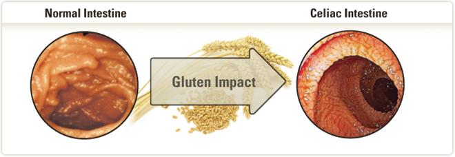 What is gluten free diet wheat costgala - Blog cuisine ss gluten ...